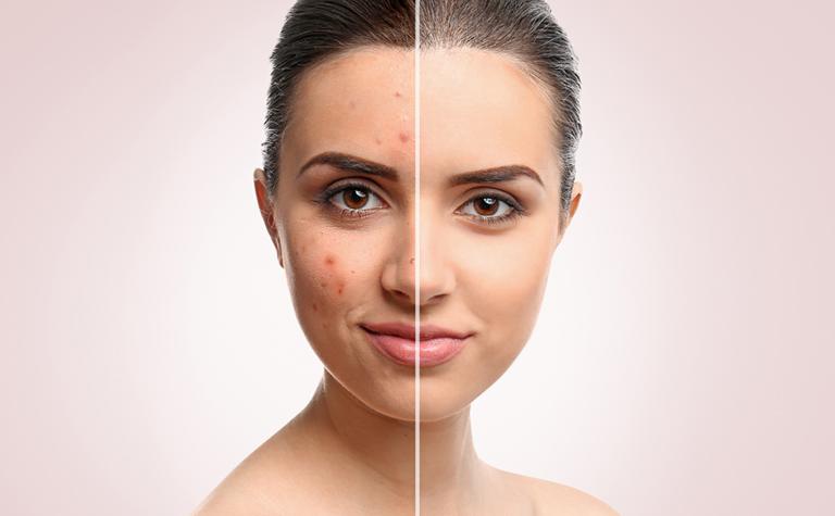 Types of acne - StudioMD