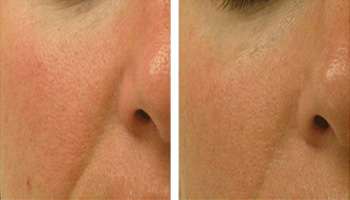 hydrafacial anti aging treatment nyc before after photos