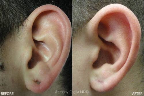 earlobe tear repair and reconstruction nyc