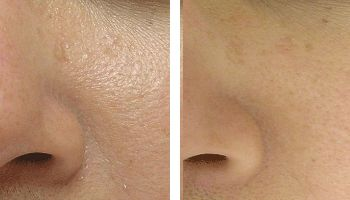 hydrafacial skin refinement nyc before after photos