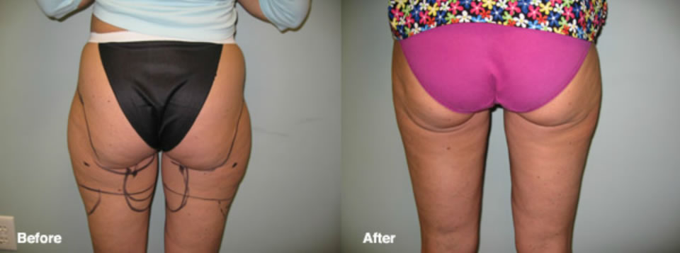 smartlipo manhattan