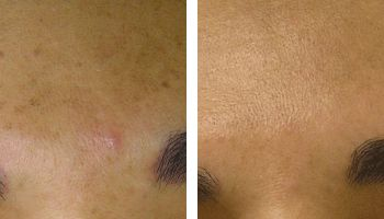 hydrafacial sun damage treatment nyc before after photos