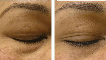 hydrafacial undereye puffiness treatment nyc before after photos