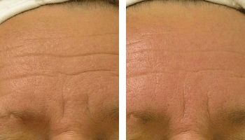 hydrafacial wrinkles reduction nyc before after photos