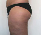 cellulite treatment nyc after