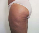 cellulite treatment nyc before