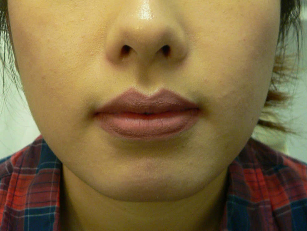 chin enhancement augmentation nyc