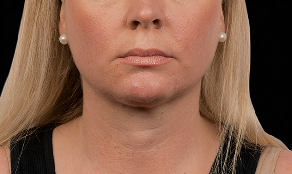 double chin reduction treatment coolsculpting nyc manhattan