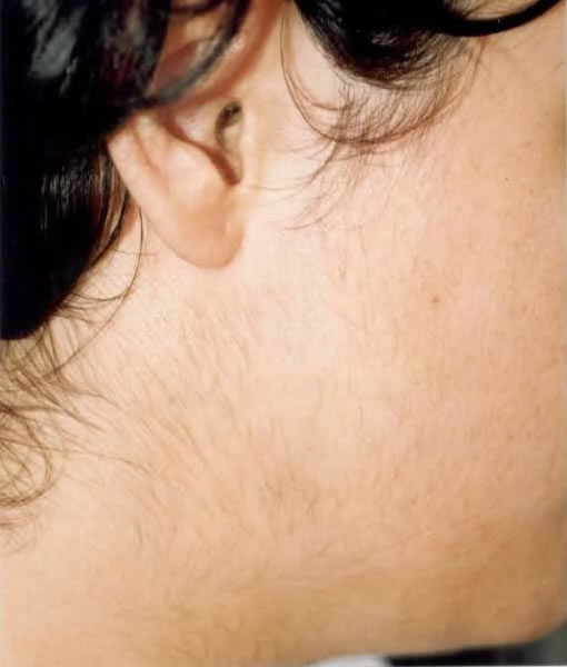 Waxing Hair Removal In Manhattannew York Hair Removal For