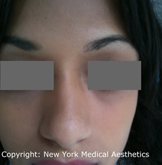 Mole Removal NYC, Warts, Skintags Removal New York City