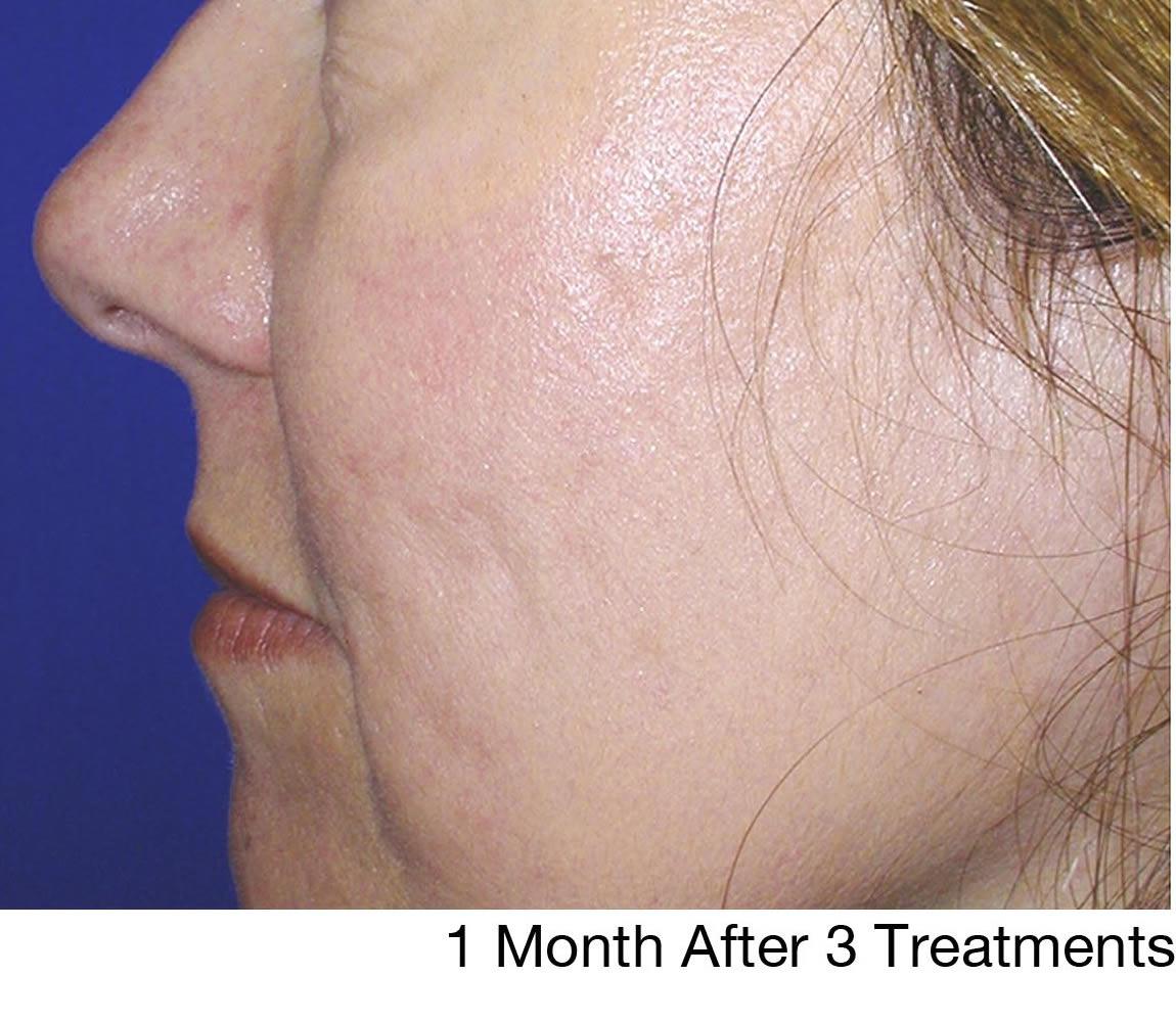 Facial rejuvenation brooklyn — pic 7