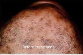 ingrown hair before chin