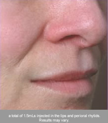 juvederm volbella lip after long island great neck