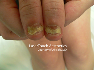 nail fungus treatment white plains westchester