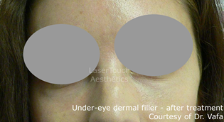 under_eye_dermal_filler_after_1