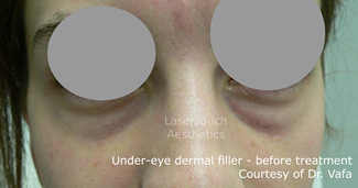 under_eye_dermal_filler_before_1.1