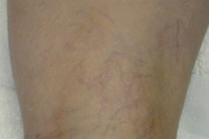 vein_removal_legs_after