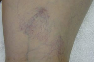 vein_removal_legs_before