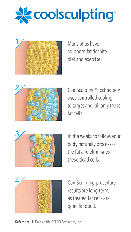 coolsculpting double chin reduction nyc manhattan