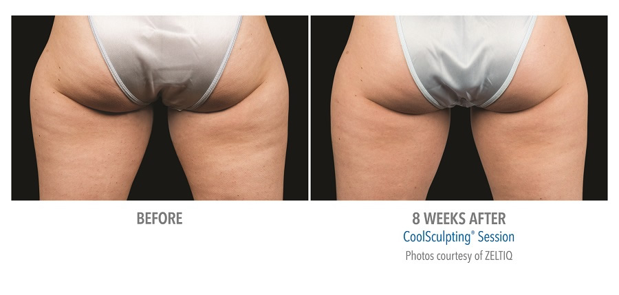 Coolsculpting New York City Nyc Manhattan For Fat
