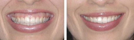 gummy smile botox long island oyster bay