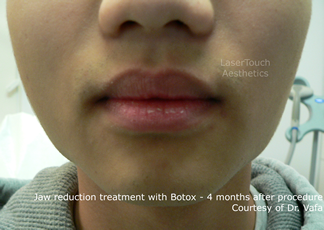 jaw reduction with Botox results after