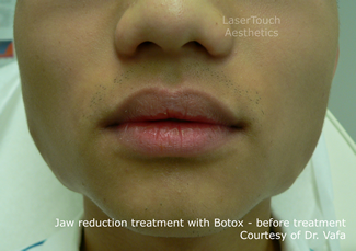 jaw reduction with Botox results before