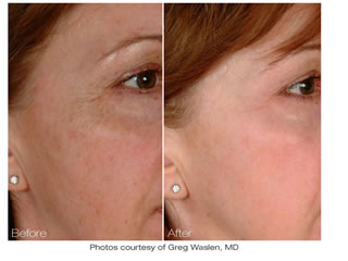 pore reduction skin rejuvenation nyc