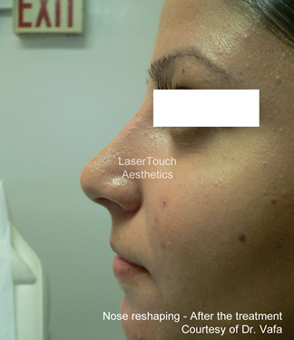 nose_reshaping_after_4
