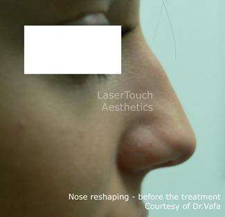 nose reshaping with fillers nyc
