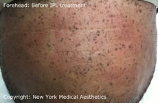 forehead freckle removal IPL nyc