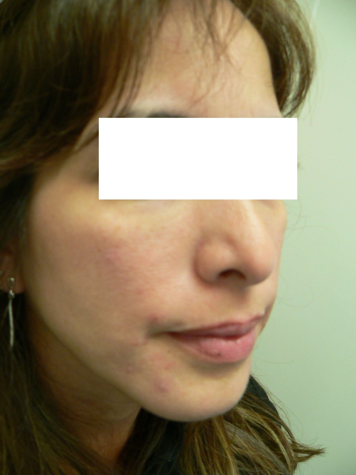 cheek enhancement augmentation long island great neck