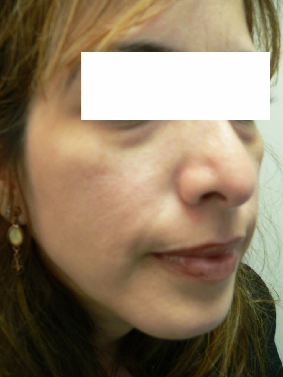 cheek enhancement augmentation long island garden city