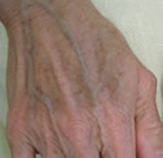 hands freckle treatment nyc