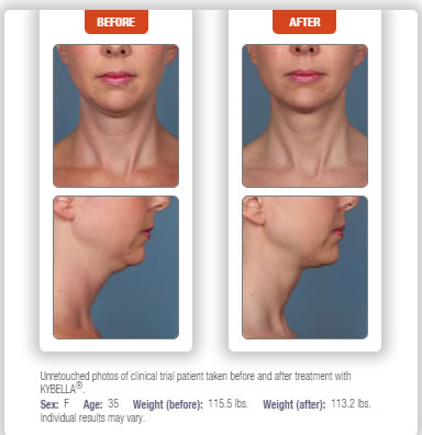 best kybella botox doctor
