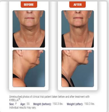 kybella doctor double chin treatment manhattan