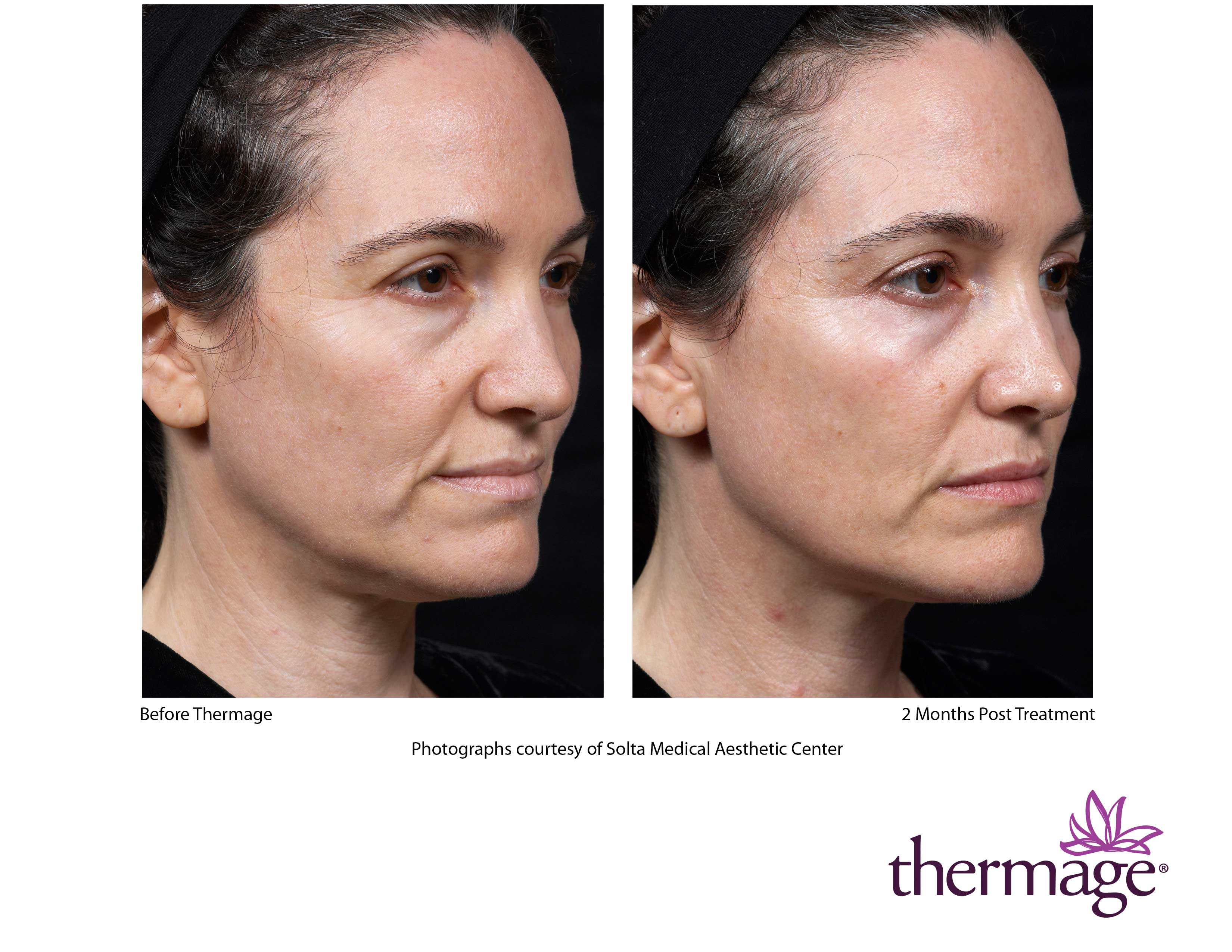 Thermage Skin Tightening Stretch Marks New York City