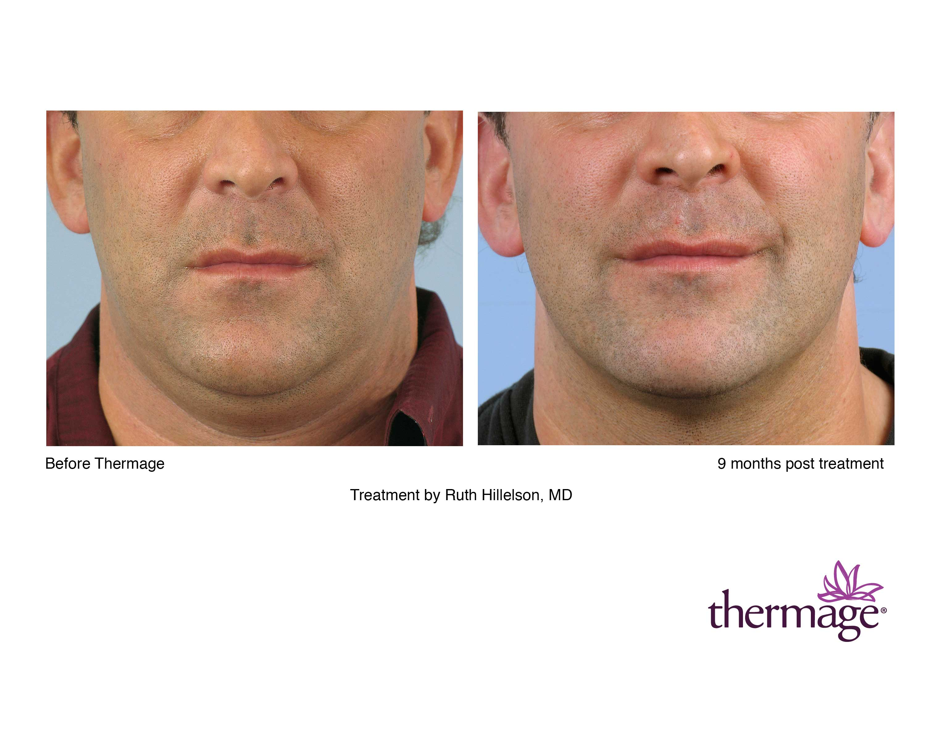 Thermage Long Island, Garden City, Great Neck, Oyster Bay, Hempstead