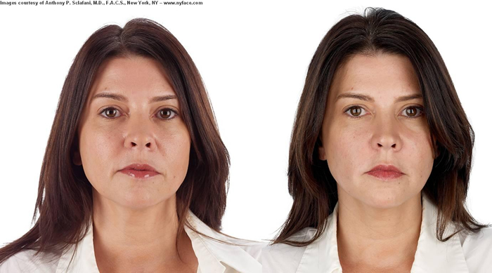 selphyl before after long island great neck