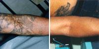 Laser Tattoo Removal Brooklyn