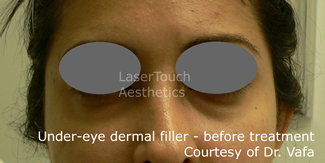 under eye dermal filler nyc manhattan treatment